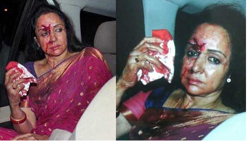 Hema Malini Accident News